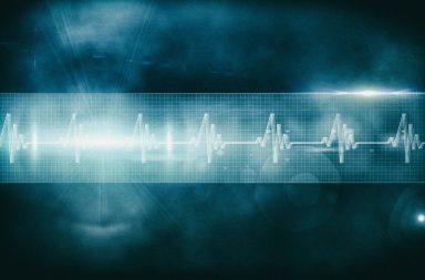 Sviluppato un nuovo software per rilevare la possibilità di insufficienza cardiaca