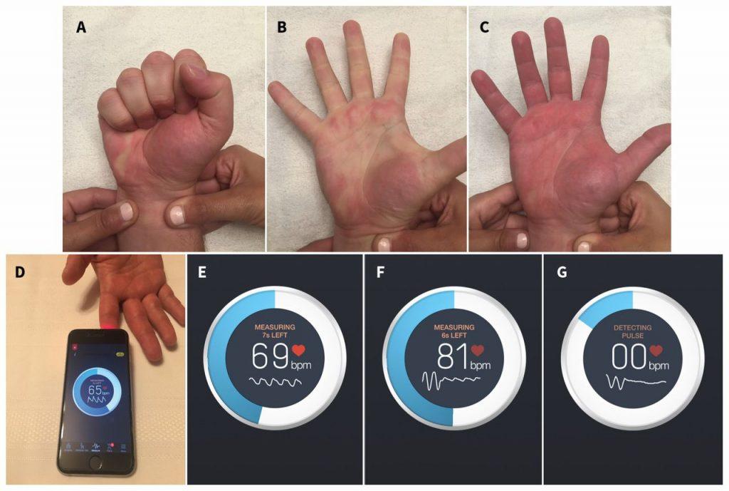 ABC: Test di Allen Modificato - DEFG: Test con Instant Heart Rate App